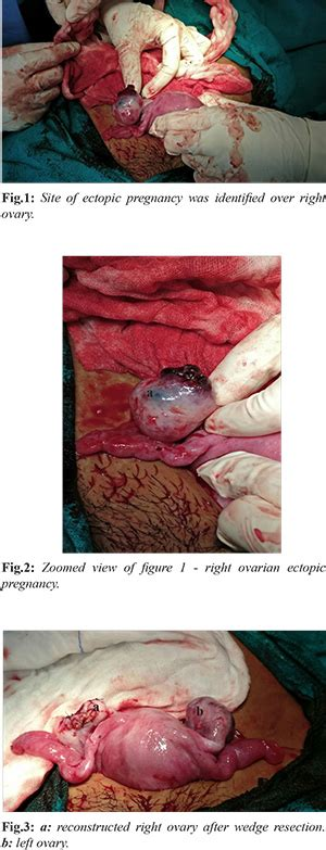 Where Can Ectopic Pregnancy In Ovary Come From - ectopic