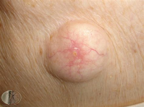 scalp cyst   Medical Pictures Info - Health Definitions Photos