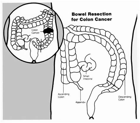 Small Bowel Resection: Definition, Indications, And 19